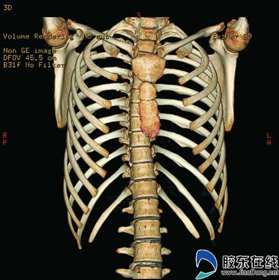 胶东在线莱州频道9月3日讯(通讯员 王瑛)胸部外伤在临床上十分常见,常常伴发肋骨骨折。由于特殊的解剖位置,肋骨骨折发生率较高,可为单根或多根肋骨骨折,第4-10肋骨骨折较为常见,第1-3肋骨较短,且有锁骨、肩胛骨及肌肉的保护,较少发生骨折,第11、12肋骨前端游离,骨折发生率也较低。肋骨的肋弓部是骨折的好发部位。影像科对于并发气胸、血胸或血气胸的肋骨骨折不难诊断,对于对位、对线尚好的肋骨骨折和发生在侧胸壁的后肋骨折常规X线胸片难以显示清楚,而多层螺旋CT因其扫描速度快、密度分辨率高,能够有效避免或减